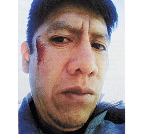 Irusta, con la herida en el rostro.