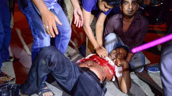 Uno de los policías heridos durante el ataque. (AFP) - STR