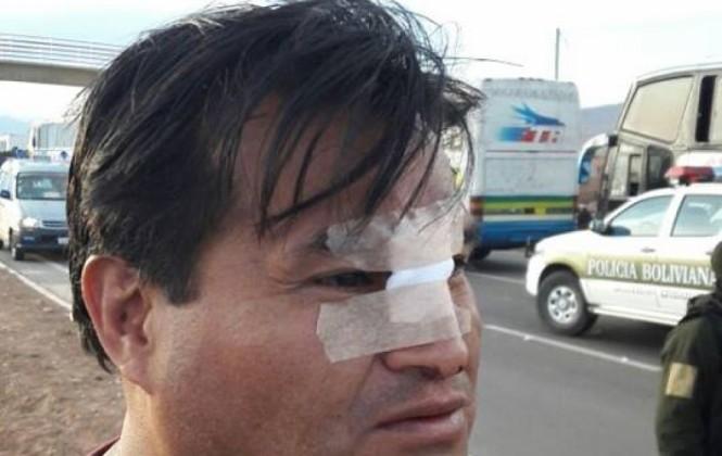 Mineros agreden a dos periodistas en Panduro