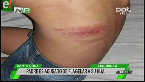 Padre flagela a su hija de 6 años por mojar el celular