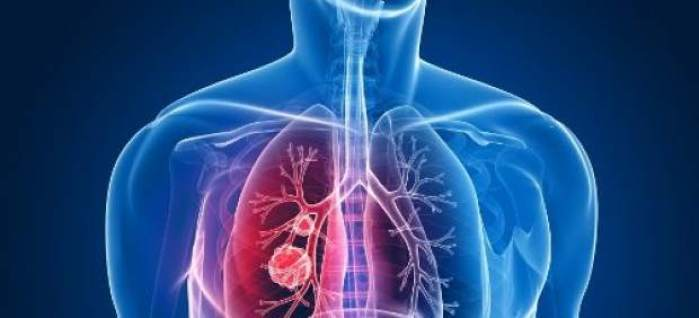 6 posibles causas del cáncer de pulmón