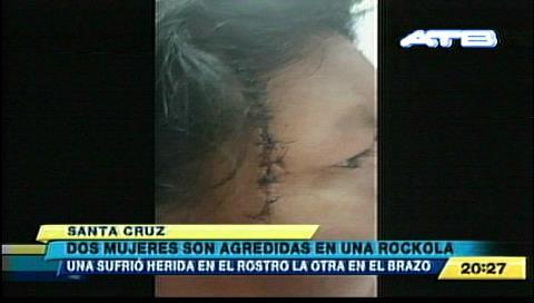 Mujer es herida en el rostro tras pelea en una rockola