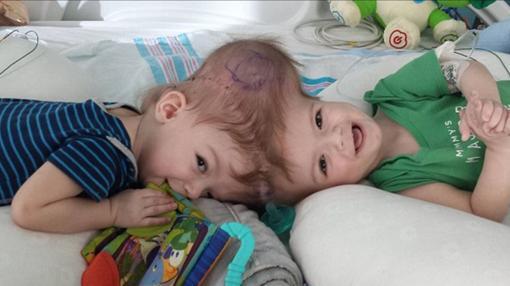 Los gemelos Jadon y Anias McDonald nacieron unidos por la cabeza- FACEBOOK