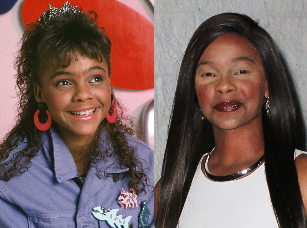 Lark Voorhies, Saved by the Bell, Plastic Surgery