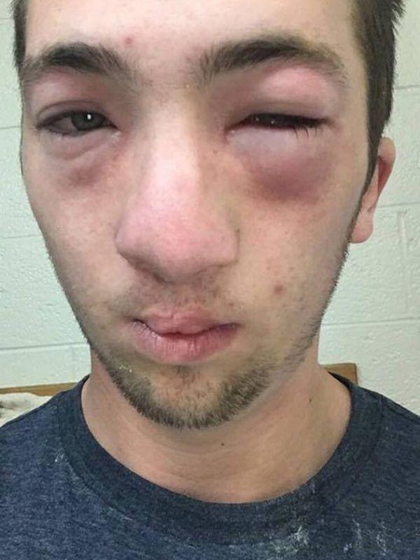 Andrew Seely padeció las consecuencias de un ritual de iniciación para ingresar a una fraternidad universitaria. Casi muere, según denunció su madre