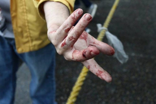 Un manifestante fue herido con perdigón en Macaracuay (Foto: Will Jiménez / LaPatilla)