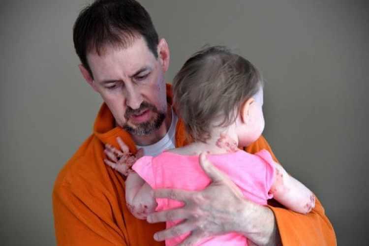 Kevin Federici sostiene a su hija Elizabeth, con cuidadode no rozar su delicada piel. (Katherine Frey/ The Washington Post)
