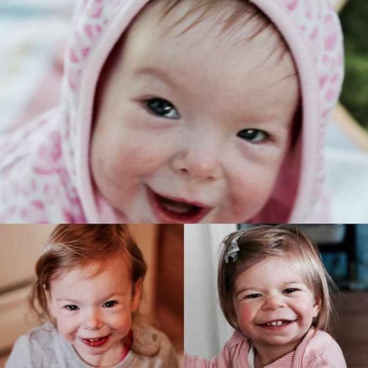 El cuadro clínico de pacientes con síndrome de Williams suele hacerse presente recién a los tres años