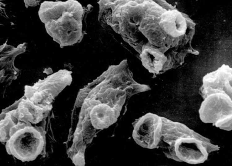 La ameba que atacael tejido cerebral. La temporada más peligrosa para su contagio es el verano.