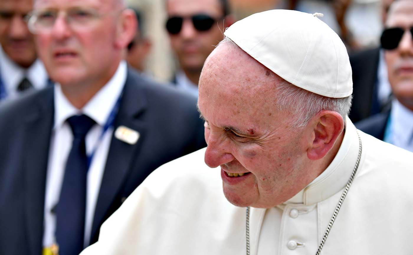 Pope Francis shows a bruise around his left eye and eyebrow caused by an accidental hit against the popemobile