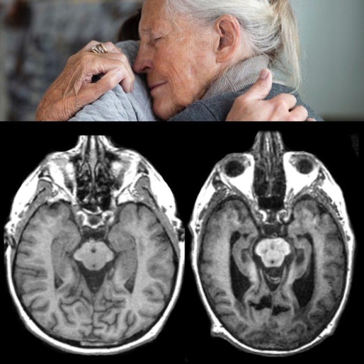La pérdida de memoria inmediata y de otras capacidades mentales, entre los flagelos del Alzheimer