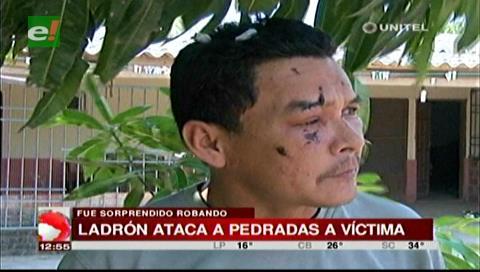 Ladrón ataca a pedradas a dueño de un domicilio tras sorprenderlo robando
