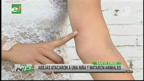 Santa Cruz: Abejas atacaron a una niña alérgica