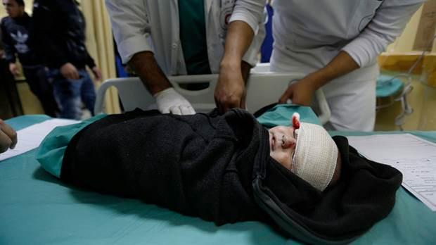 Un bebé palestino herido recibe tratamiento en un hospital después de un ataque aéreo israelí en Beit Lahia, en el norte de la Franja de Gaza