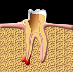 The root canals are filled and sealed