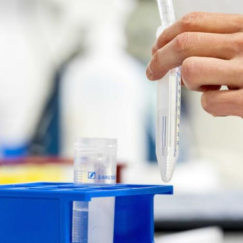 S.Korea's Celltrion says COVID-19 drug shows drop in viral load in animal testing