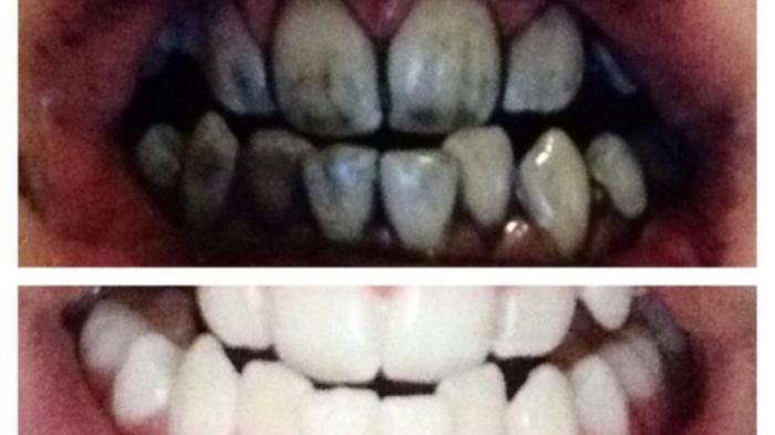 Ini Cara Cepat Putihkan Gigi