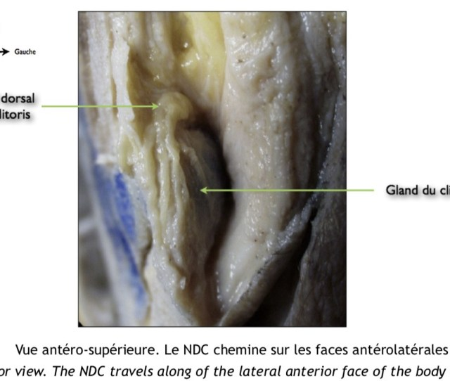 I Cant Read French And Havent Translated This Article But It Looks Like These Authors Dissected Even The Terminal Branches In The Glans Labeled Gland