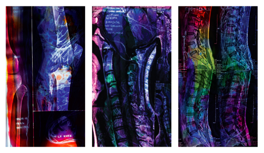 A triptych of medical scans. Reds, blues, yellows and purples with white handwritten words and webbed white lines form a backlit layer.