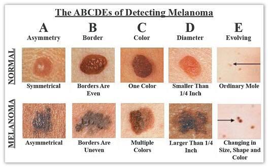 Identifying melanoma