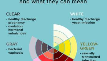 colours of vaginal discharge infographic