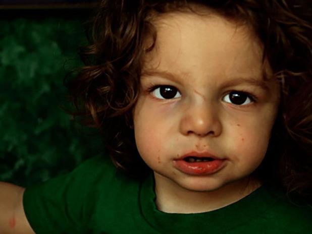 طفل مع كسر الأنف.  الصورة الائتمان: ماركو أنطونيو توريس ، 2006.