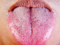 Image result for yeast infection sores pictures
