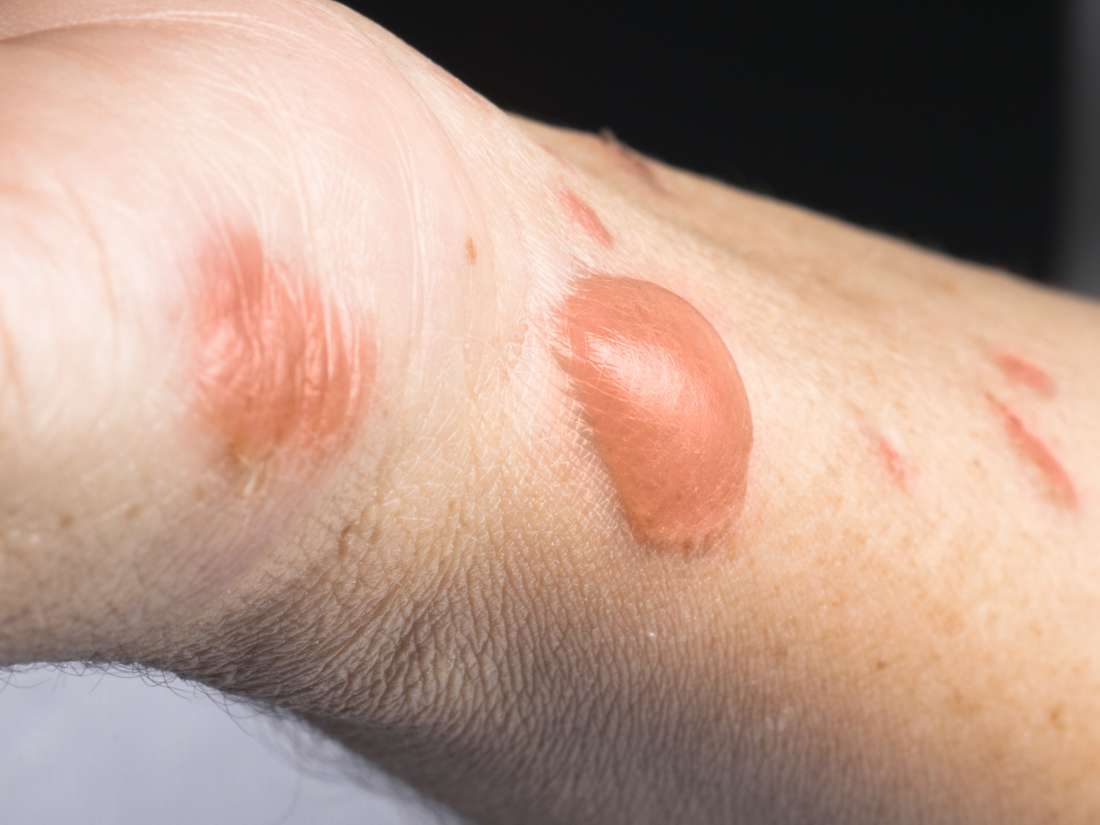 First Degree Burn Definition Symptoms And Treatments