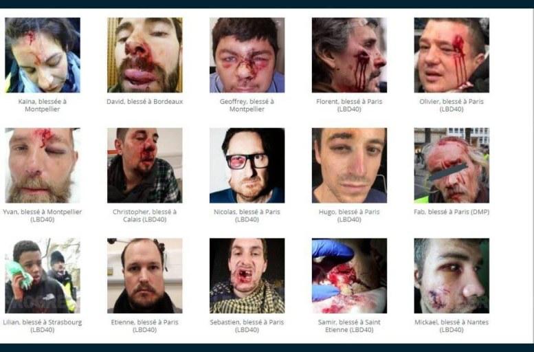 """Le site """"Desarmons-les"""" tente de recenser les personnes blessées par l'intervention des forces de l'ordre lors des rassemblements des gilets jaunes. Capture d'écran"""
