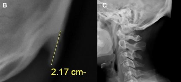 Dos radiografías donde se ve el 'cuerno' que crece por mirar el móvil