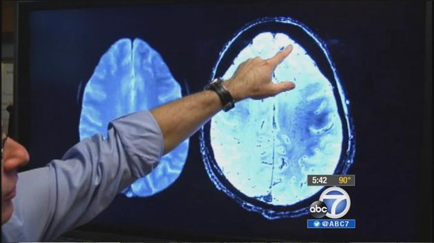 Reversing Alzheimer's effects with non-drug treatment?