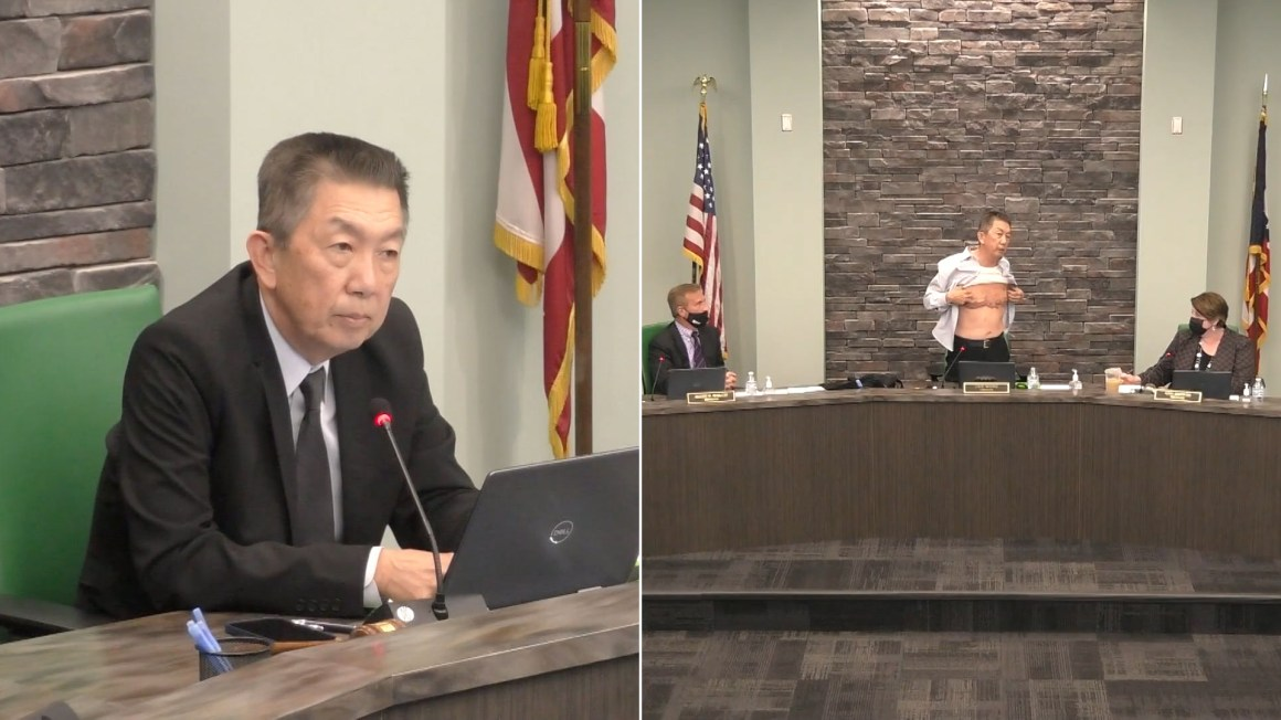 'Is this patriot enough?' Asian American official lifts up shirt, shows military scars during speech about racism