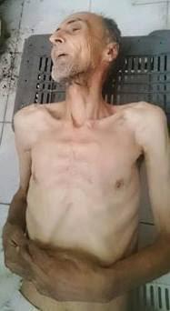 """بالصور والفيديو.. الجوع يفتك بسكان """"مضايا"""" السورية.. واستغاثات لا تلقى آذانا صاغية"""