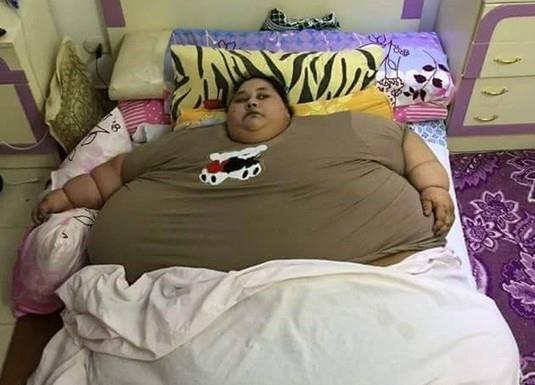 مصرية وزنها نصف طن ولم تخرج من منزلها منذ ربع قرن