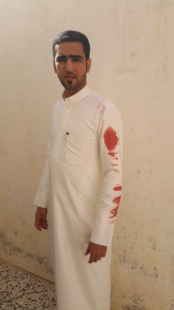 """أحد الناجين من التفجير الذي استهدف مسجد """"الرضا"""""""