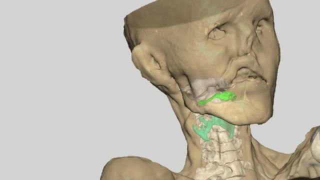 In 2016 Italian scientists reconstructed Ötzi the Iceman's vocal tract.