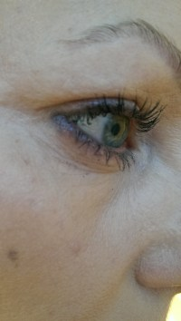 vipper-før-swiss-clinic-serum