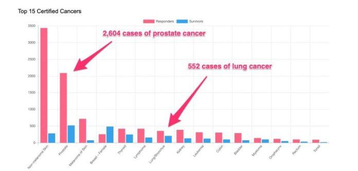 prostate cancer 9:11