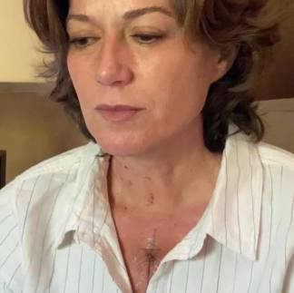 Amy Grant Shares 'Miraculous' Experience She Had While Undergoing 'Unanticipated' Open Heart Surgery
