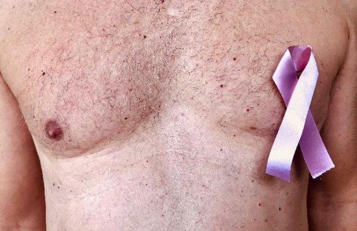 La original iniciativa para detectar el cáncer de mama que creó una diseñadora con limones