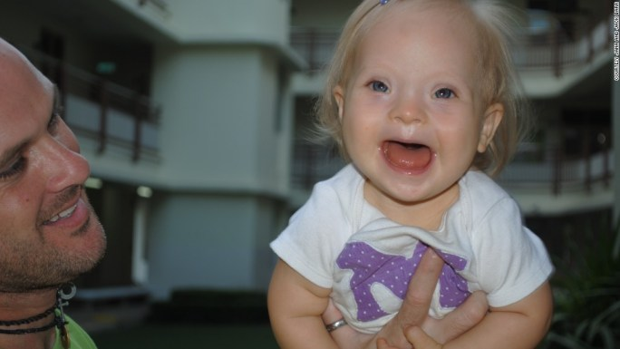 Image result for To the Dads Facing a New Down Syndrome Diagnosis, From Another Dad