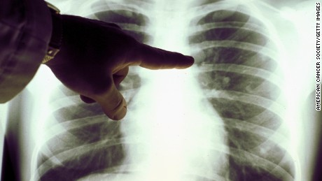 More people in the US are left with lung cancer, report finds (2019)