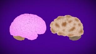 Alzheimer's Disease Fast Facts