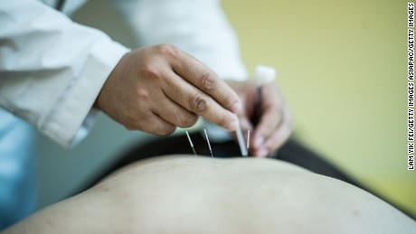 New law sparks debate over future of traditional Chinese medicine