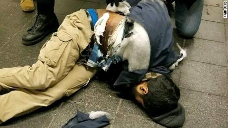 Akayed Ullah after his bomb detonated.