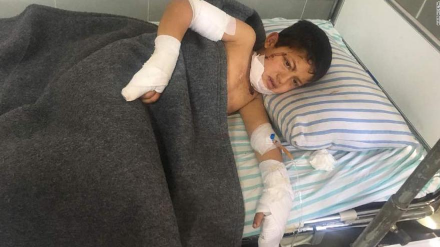 A child rests after being treated in Avrin Hospital in Afrin.