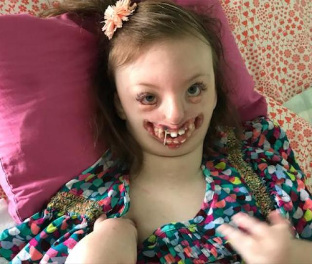 Trolls Used Disabled Girls Photo To Advocate For Abortion