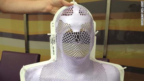 Phil Rech's radiotherapy mask was molded to his face.