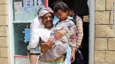 A man transports a child to a hospital after he was wounded Thursday in the strike in northern Yemen.