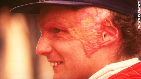Niki Lauda suffered severe and permanent burns following his crash.